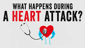 what happens during a heart attack krishna sudhir youtube