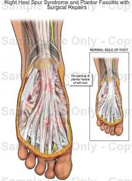 Planters Fasciitis Surgery by Right Heel Spur Syndrome And Plantar Fasciitis With Surgical