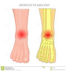 Foot Pain Map Anatomy Of Arthritis Images Learn Human Anatomy Image