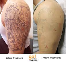 7 best tattoo removal images on pinterest tattoo designs makeup