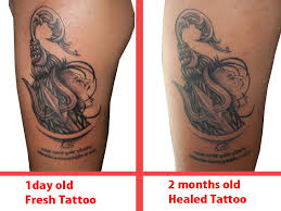 tattoo scabbing scab peeling falling off causes home remedies