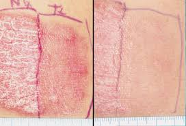 psoriasis and ultraviolet light quy hoa national leprosy dermatology hospital what is psoriasis