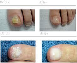 toenail fungus laser wart removal nail fungus laser