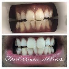 dental blog dentistry blog dentists articles dentissimo
