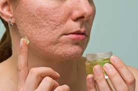 10 most effective ways to remove acne scars pimple marks