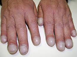 ridges in fingernails vertical horizontal causes symptoms