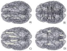 multimodal imaging brain connectivity analysis mibca toolbox peerj