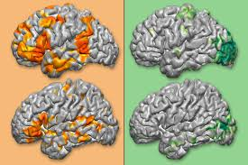 Brain Mapping 3 6 Million To Fund Personalized 3 D Brain Maps To Guide