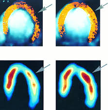 detection of coronary artery disease with myocardial contrast