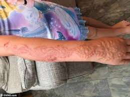 7 is left with chemical burns from henna in egypt daily