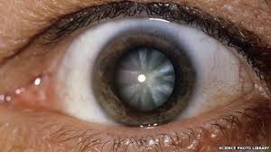 Can Cataracts Lead To Blindness India Cataracts Scandal Arrest Over U0027botched U0027 Surgery Bbc News