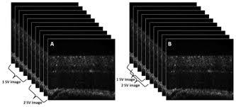osa optical coherence tomography angiography of stimulus evoked