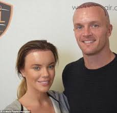 sean coronation street hair tansplant maria fowler proudly parades results of hair transplant daily