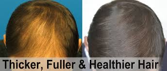 low level light therapy hair hair loss treatment in ludhiana hair fall treatment in ludhiana