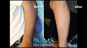 before and after male laser hair removal orange county arms youtube