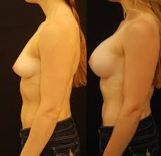 breast augmentation with internal lift u2014 lara devgan md mph