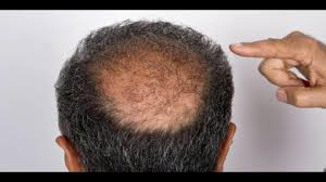 hair loss treatment male pattern baldness cure youtube