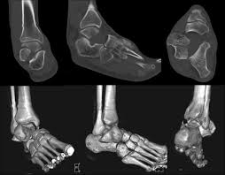 Subtalar Joint Fracture Coronal Plane Talar Body Fracture Associated With Subtalar And
