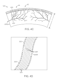 Architectural Drafter Resume Patent Us20130066283 Corneal Denervation For Treatment Of Ocular