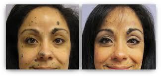 non surgical mole removal minneapolis skin rejuvenation clinic