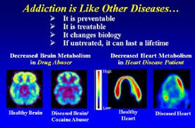 Passages Malibu Meme - can addiction really be cured passages malibu and curing addicts