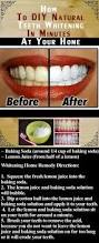 whiten teeth i must try this soon if not for the fact that im