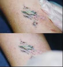 101 best tattoo removal process images on pinterest tattoo