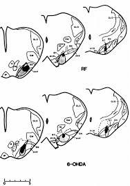 lesions substantia nigra retard pavlovian eye blink