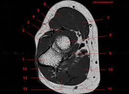 Mri Sectional Anatomy Mri Of The Elbow Detailed Anatomy