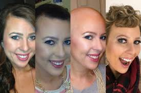 hair cut steps after cancer cancer chemotherapy and hair loss why it matters wellness us news