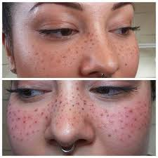 tattoo makeup freckles people are getting freckles tattooed on their faces in the name of