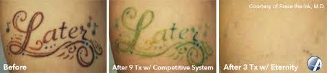 laser tattoo removal in san antonio texas eraser clinic