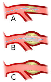 angioplasty wikipedia