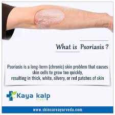psoriasis treatment ayurvedic treatment for psoriasis haryana herbal treatment for