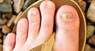 quiz myths and facts about toenail fungus