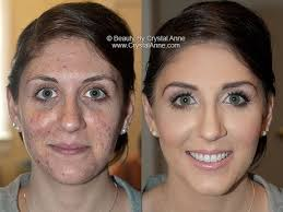 airbrush makeup professional best 25 rosacea makeup ideas on best foundation for