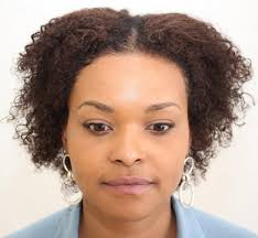 hair transplant for black women my u fue hair transplant women no shave no shaving no short hair