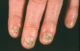 nail fungus american academy of dermatology