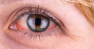 eyes sensitive to light treatment red eye causes and how to treat red eyes