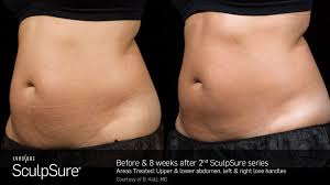 Hair Extensions Kitchener by Sculpsure Hair Studio Spa Medispa Euro Reflections Kitchener