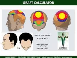 graft calculator anagen in hair transplant mumbai 9222222407