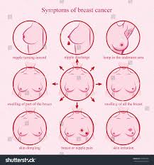 Female Breast Anatomy And Physiology Symptoms Breast Cancer Medicine Pathology Anatomy Stock Vector