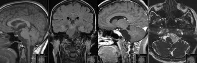 Brainstem Mass Radiology Mri Epidermoid Cyst