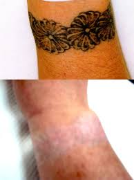 tattoo removal transformations east midlands uk
