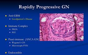 glomerulonephritis urine microscopy nephrotic syndrome ppt download