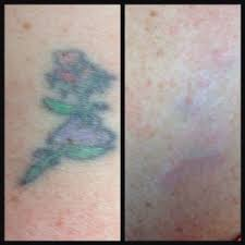 tattoo removal frequently asked questions laser tattoo removal dallas laser centers of north dallas