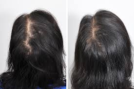 hair transplant for black women hair restoration hair transplant surgery for women in new york