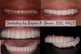 Bridge Dental Cost Estimate by All On 4 Dental Implants Cost Cost Of All On 4 Bauer Smiles