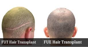 fut hong kong hair transplant surgical vs non surgical hair restoration in saudi arabia hair