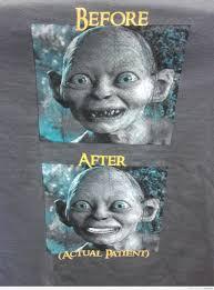 Funny Dentist Memes - golem finally went to the dentist2 nerd 2 nerd2 nerd